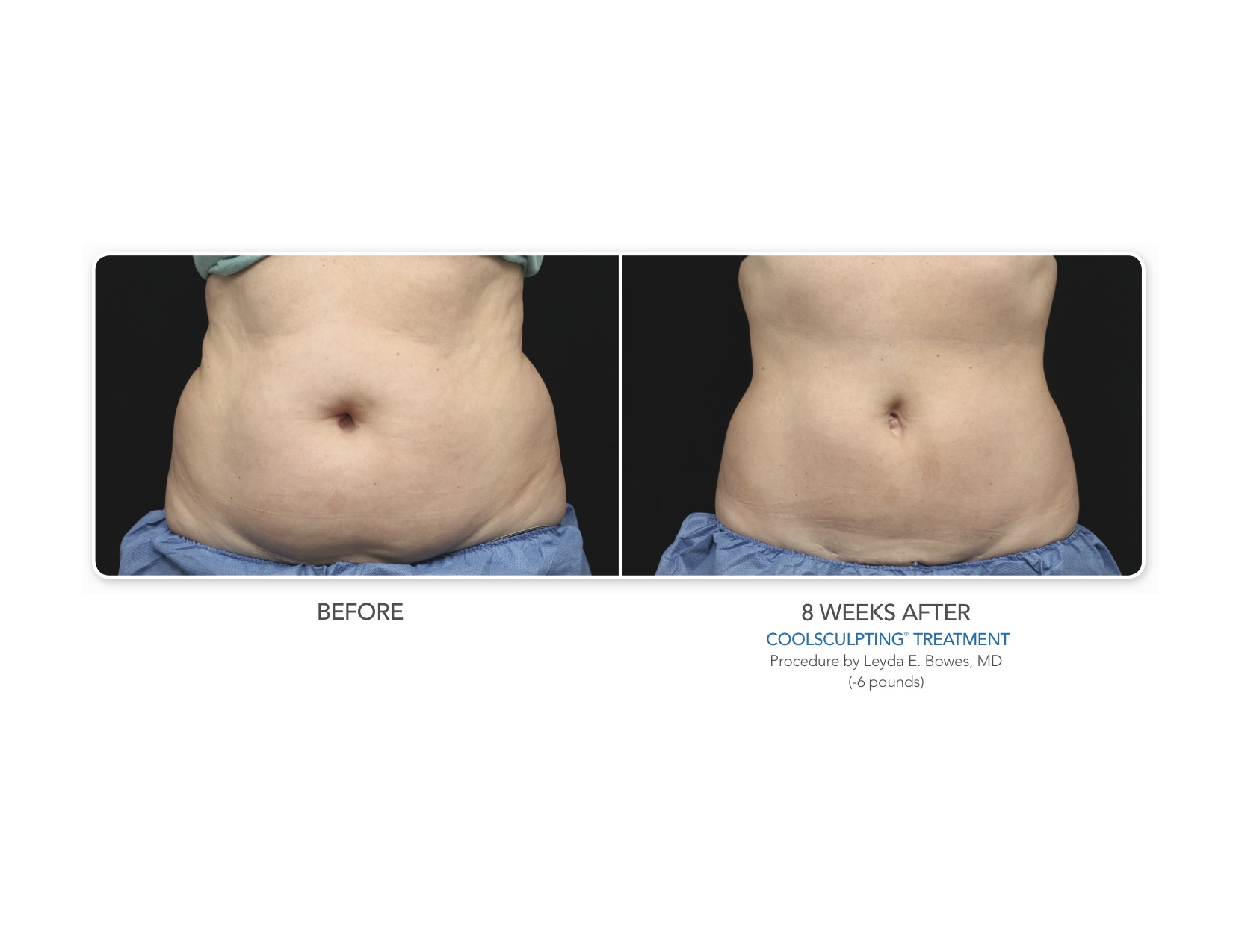 coolsculpting pre and post