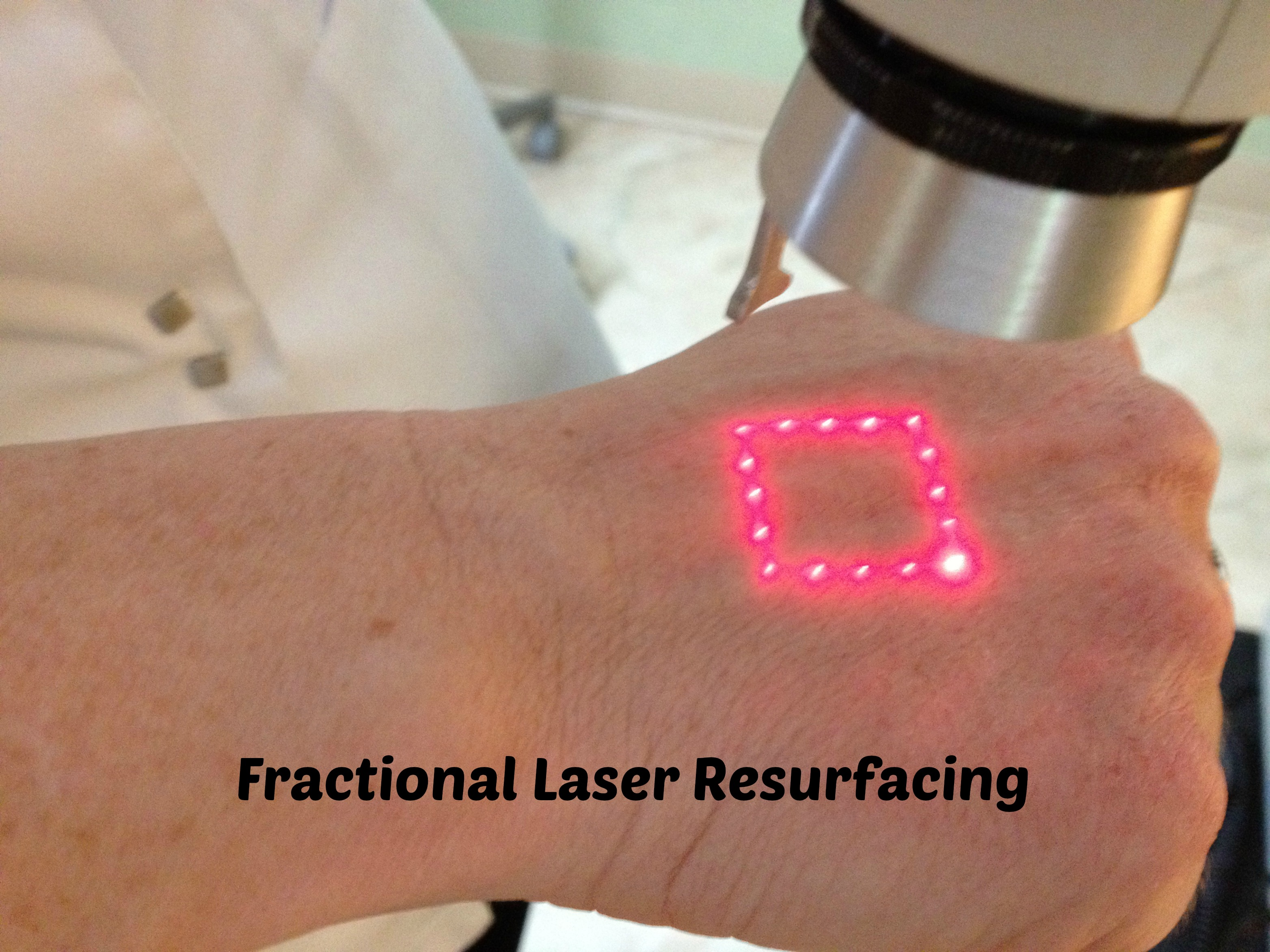 fractional laser resurfacing photo