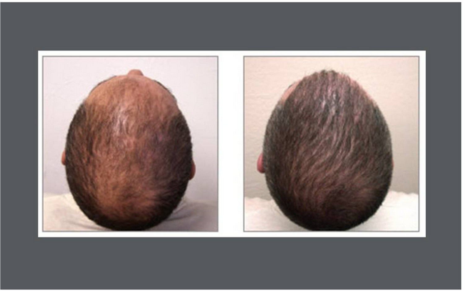 hair transplant - long island new york - dr. stephen greenberg