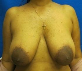 breast lift Connecticut Dr. Jandali