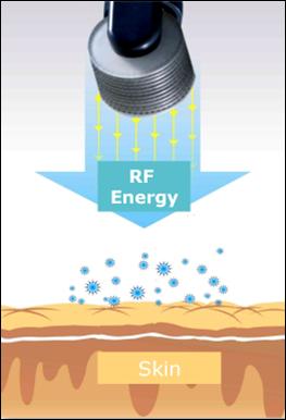 skin resurfacing fractional pixel rf