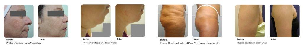 tissue tightening before and after photos