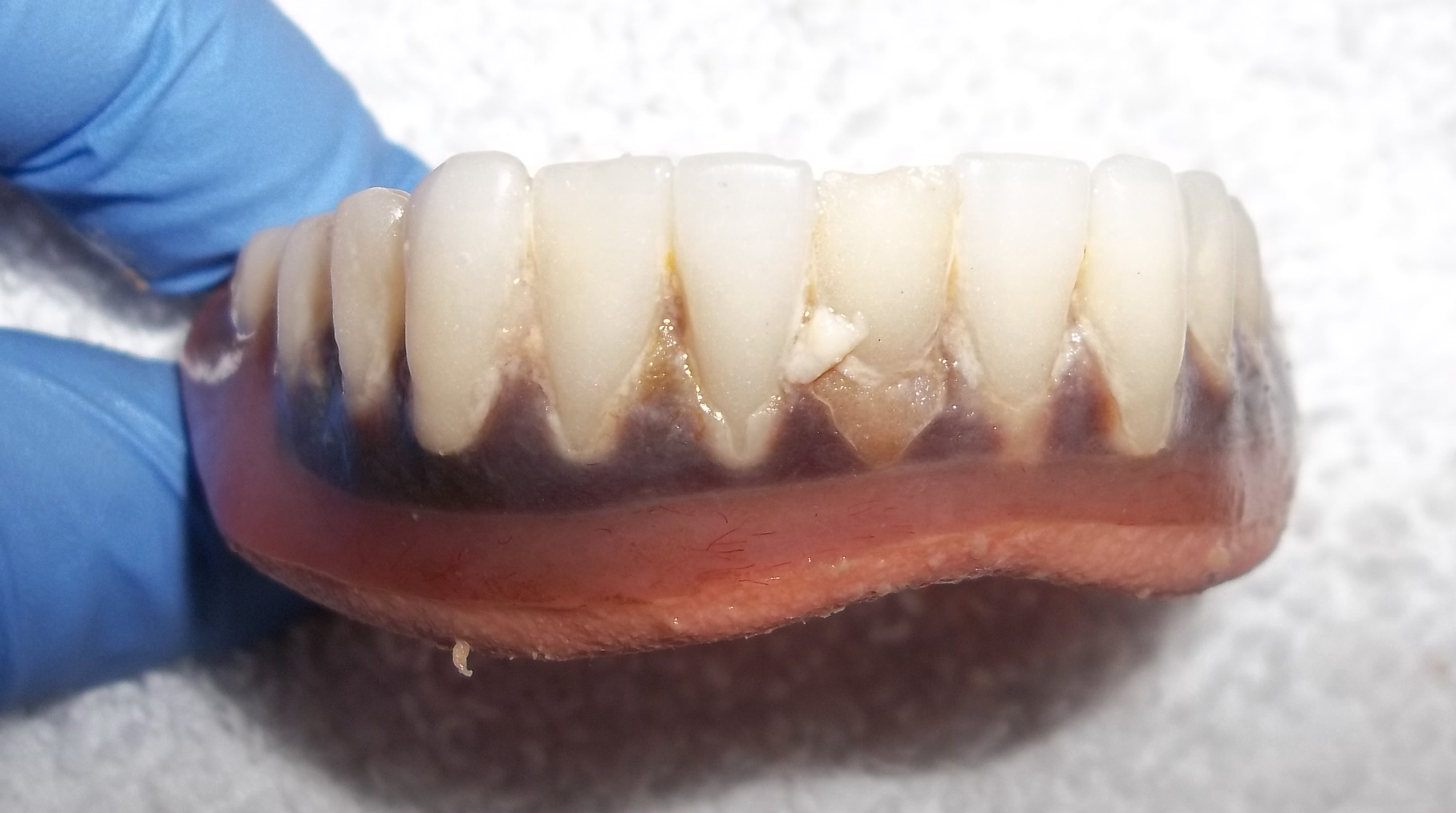 Old worn denture