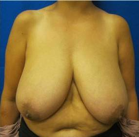 breast reduction Fairfield Bridgeport Westport Connecticut Jandali Plastic Surgery