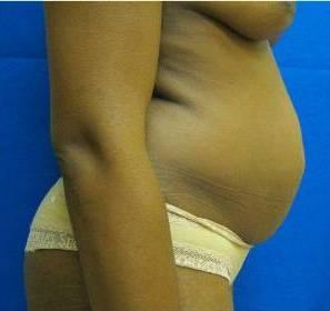 Tummy Tuck Abdominoplasty Fairfield Westport Bridgeport Connecticut Jandali Plastic Surgery