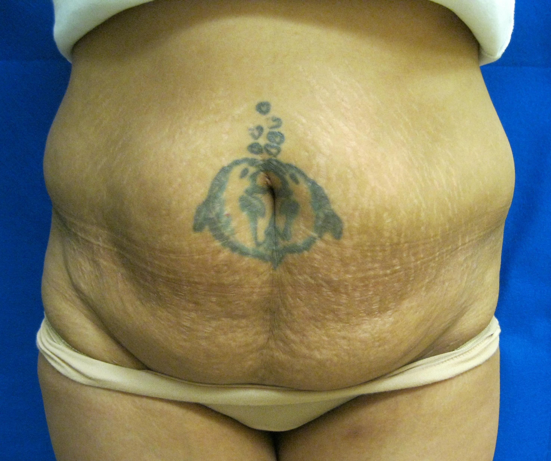 Tummy tuck liposuction Fairfield Westport Bridgeport Connecticut Jandali Plastic Surgery