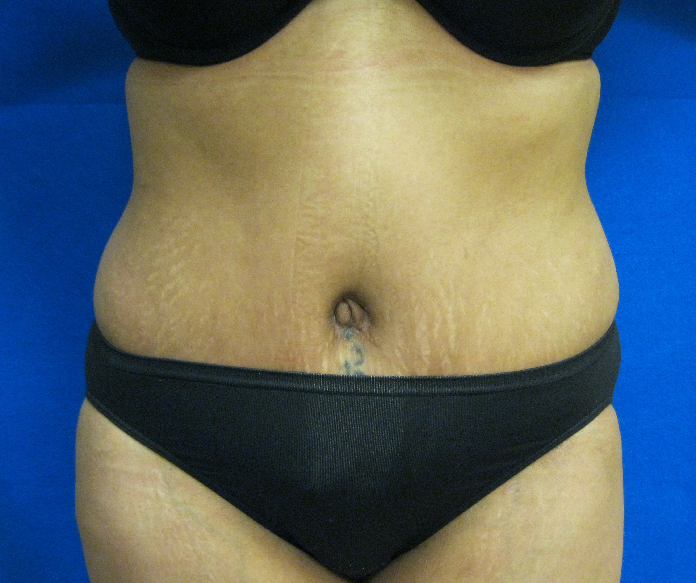 Tummy tuck liposuction Fairfield Westport Bridgeport Connecticut Jandali Plastic Surgery