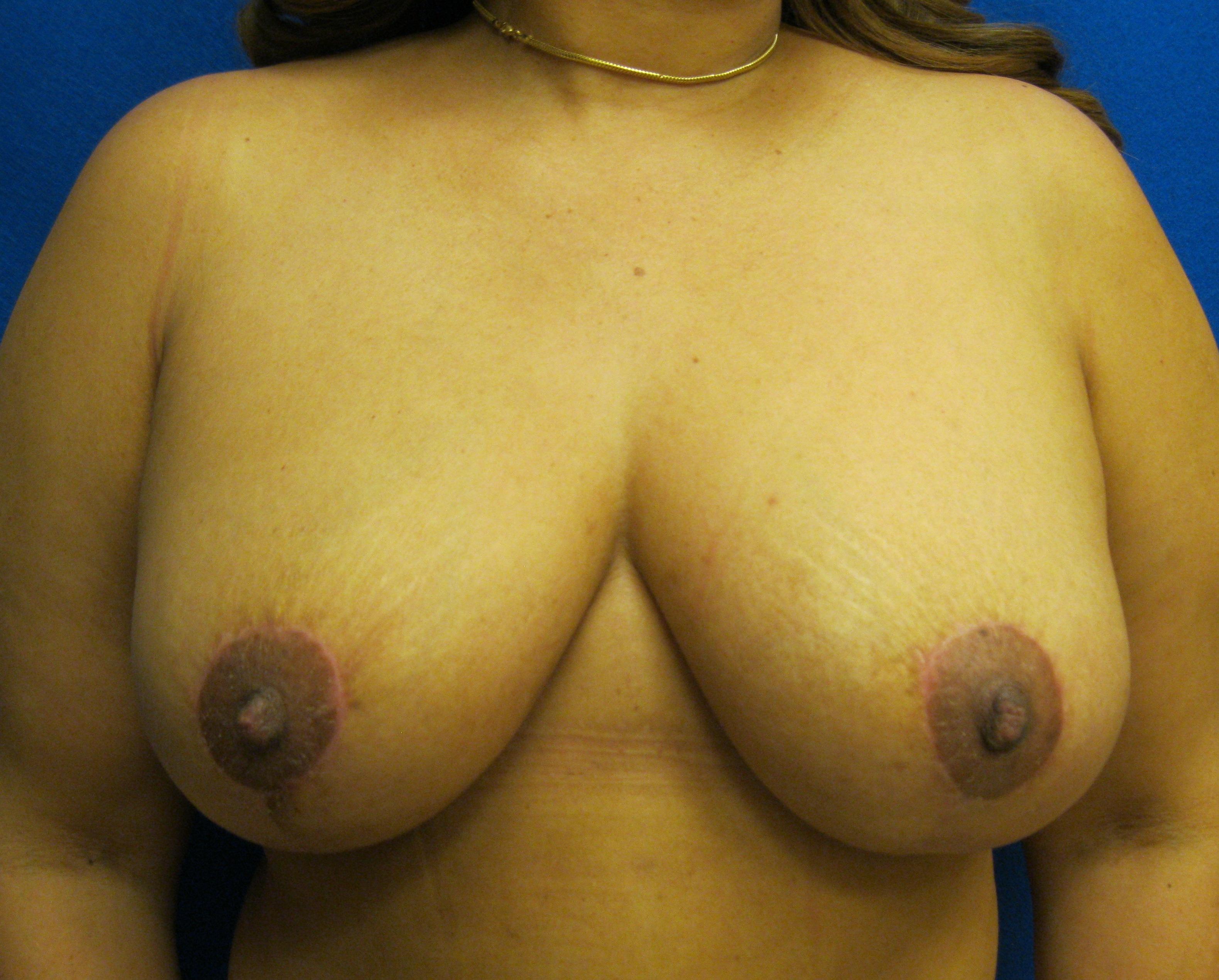 Mommy makeover breast lift photo Fairfield Westport Bridgeport Connecticut Jandali Plastic Surgery