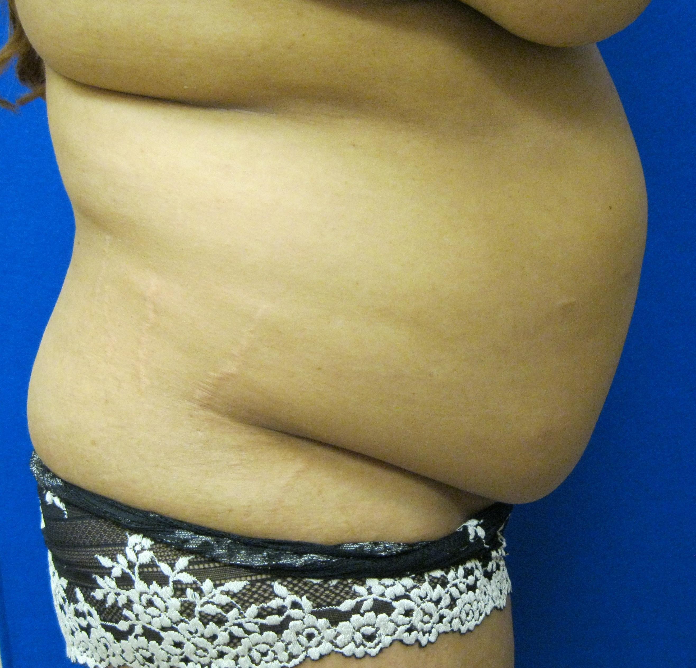 Mommy makeover tummy tuck liposuction photo Fairfield Westport Bridgeport Connecticut Jandali Plastic Surgery