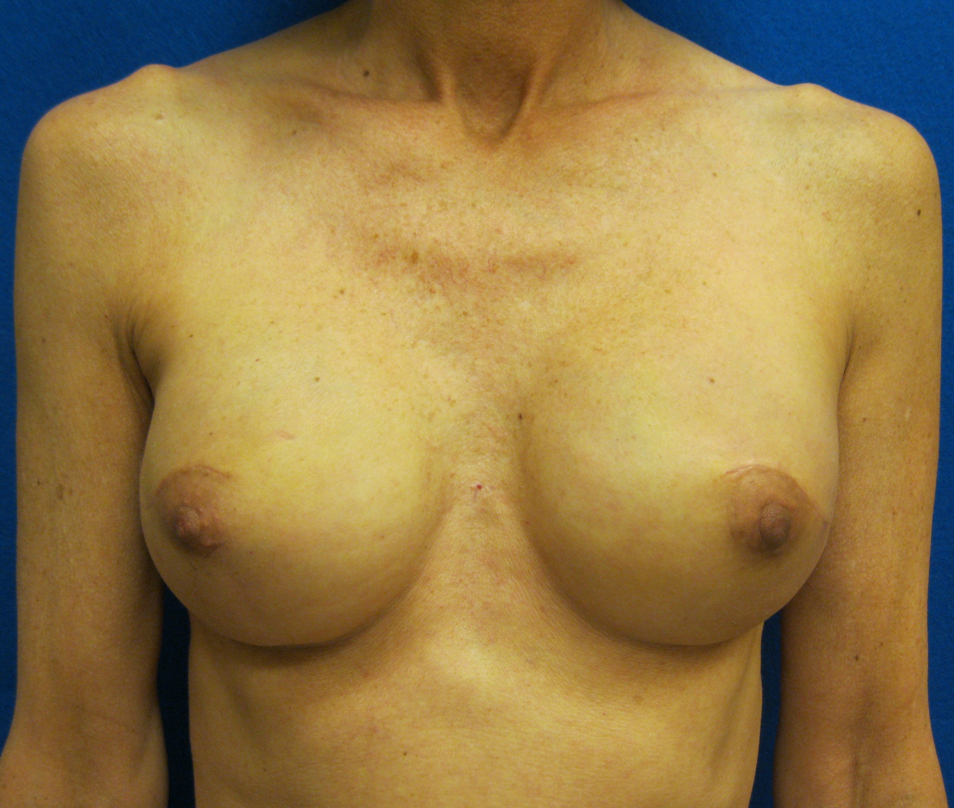 nipple sparing mastectomy one stage implant reconstruction fairfield westport connecticut jandali plastic surgery