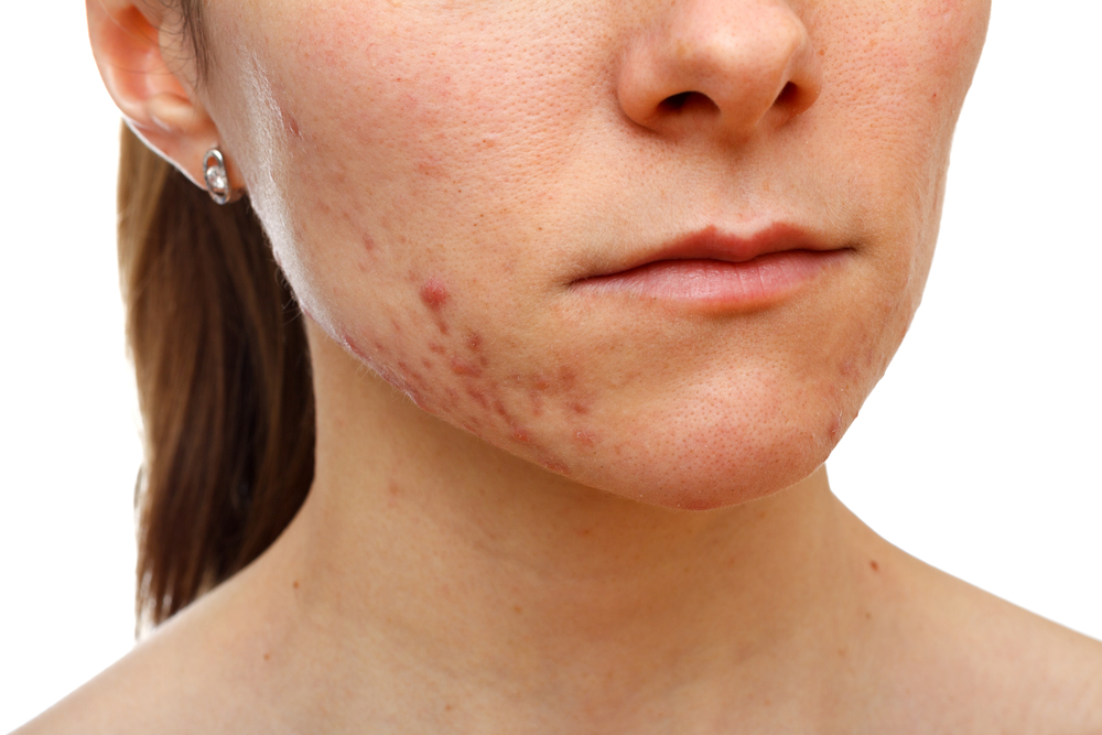 chemical peels acne scar treatment fairfield westport bridgeport trumbull connecticut jandali plastic surgery