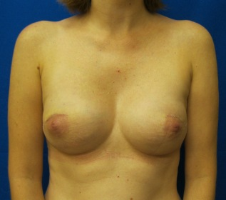 one single stage immediate mastectomy reconstruction with implants fairfield westport connecticut new york jandali plastic surgery