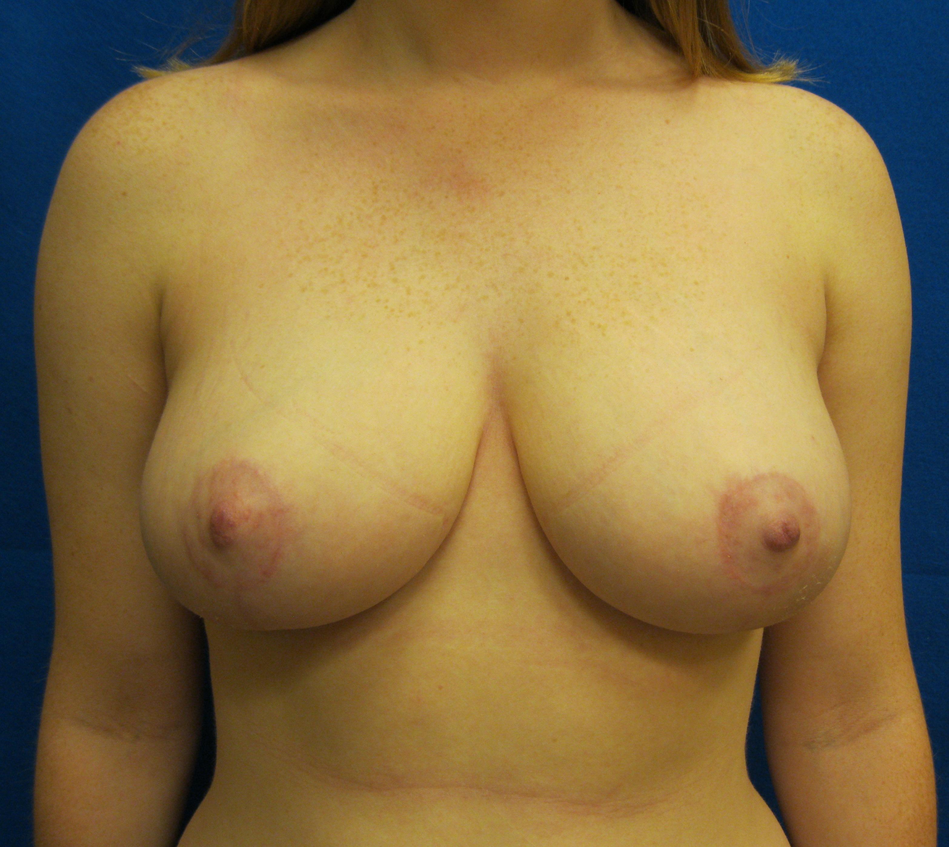 breast reduction surgery scars fairfield bridgeport connecticut jandali plastic surgery
