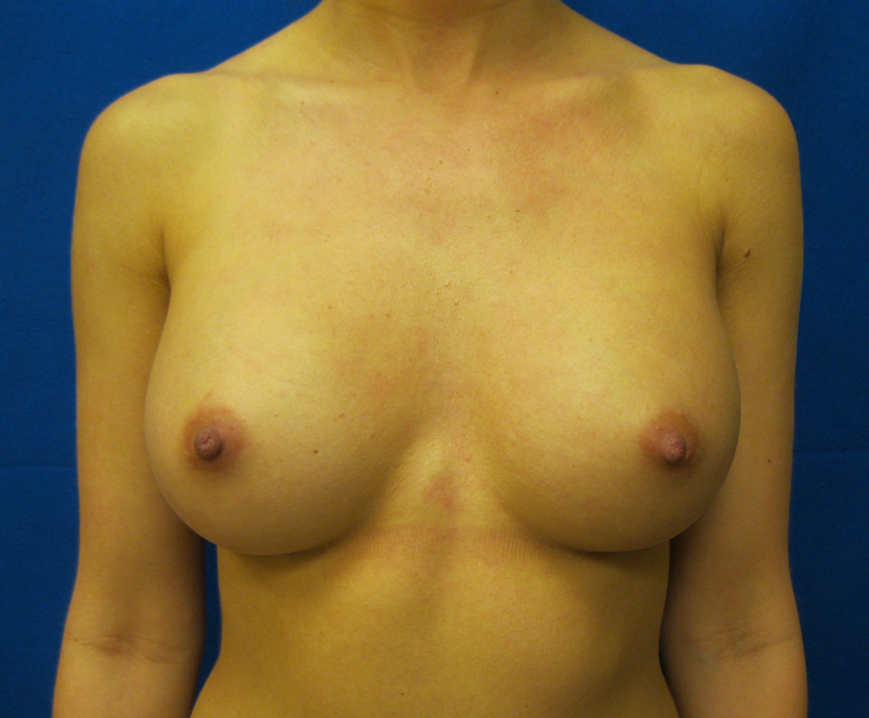 silicone breast augmentation bridgeport fairfield trumbull connecticut jandali plastic surgery