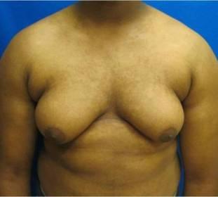 gynecomastia treatment male breast reduction bridgeport fairfield new haven connecticut jandali plastic surgery