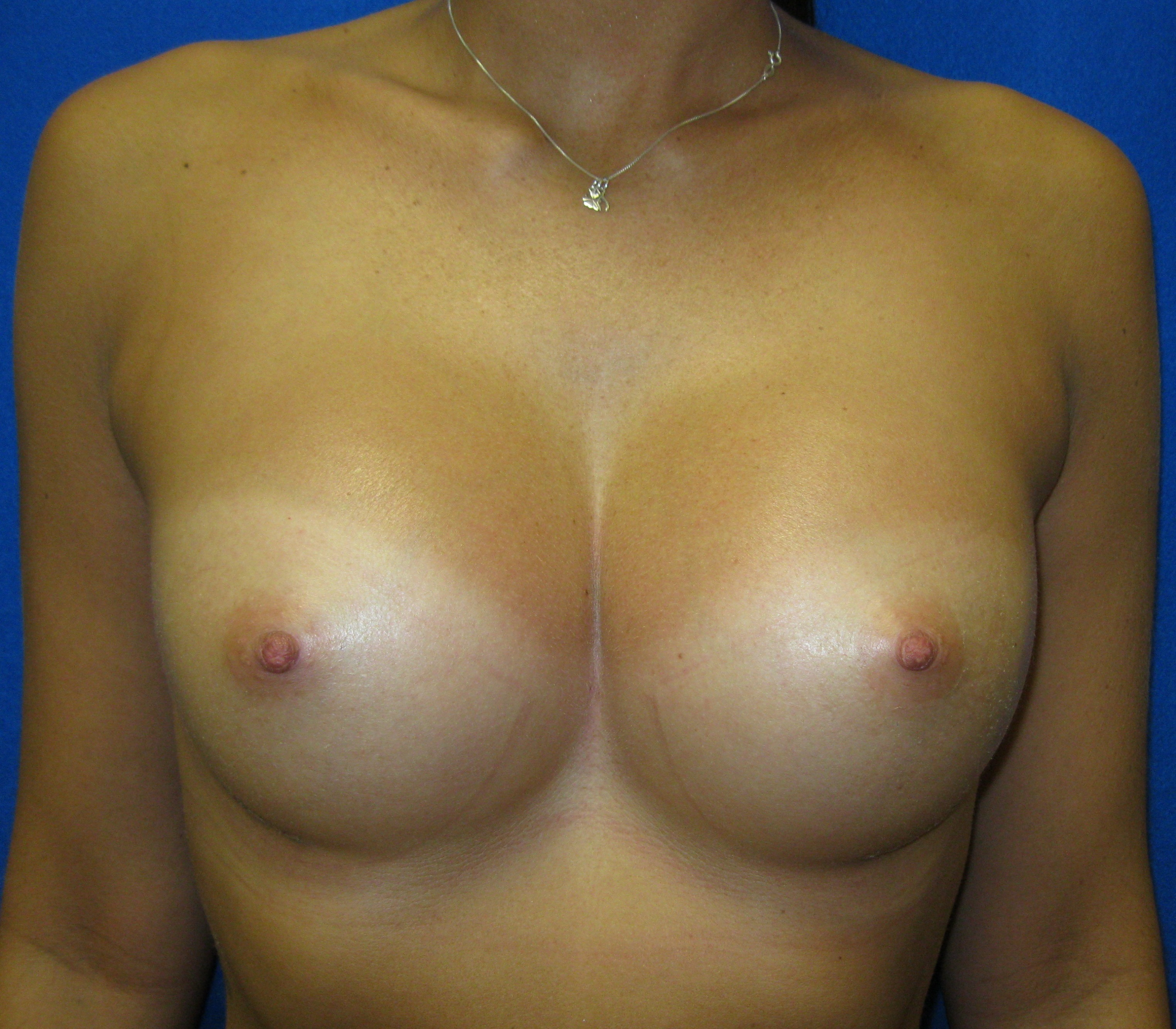 breast augmentation silicone implants fairfield bridgeport trumbull connecticut jandali plastic surgery