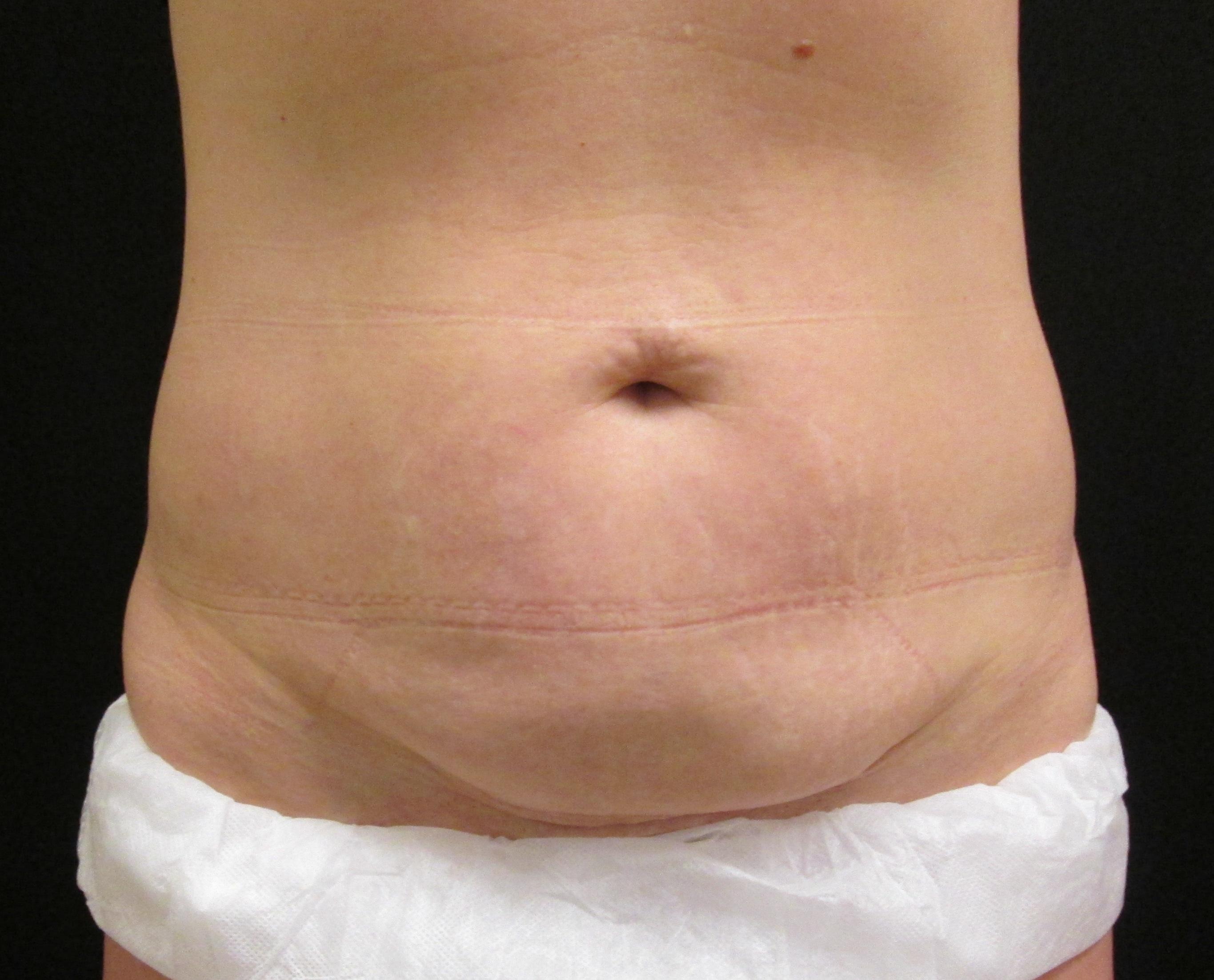 coolsculpting tummy tuck alternative bridgeport fairfield connecticut jandali plastic surgery