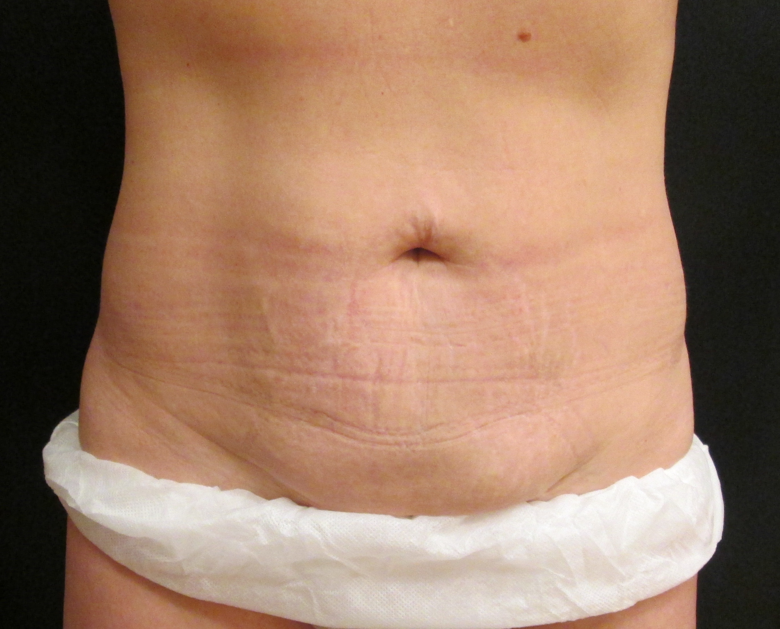 coolsculpting abdomen muffin top non-surgical fat reduction jandali plastic surgery connecticut