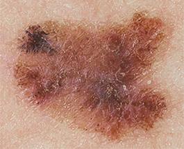 melanoma connecticut