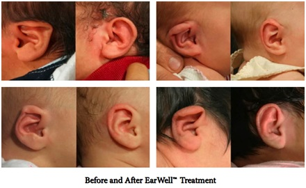 Infant ear molding for prominent ears and deformities Connecticut New York Massachusetts