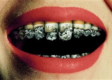 A woman's teeth made from Marlboro cigarettes.