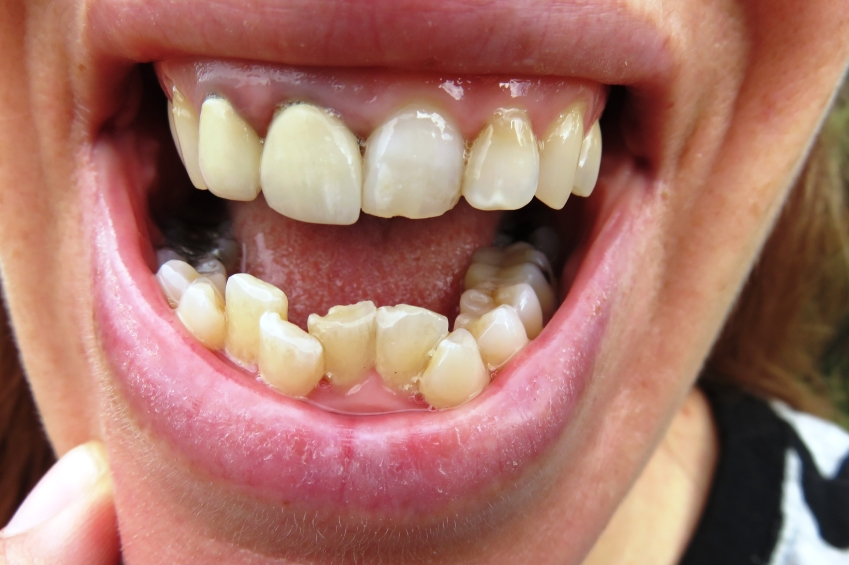 Image result for how crooked teeth affect your health