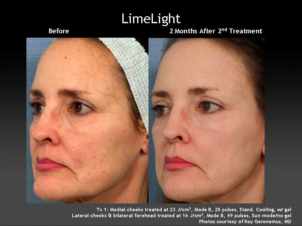 anti aging treatment image