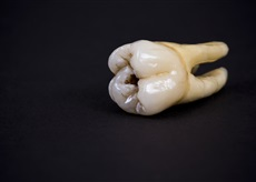 Tooth with a cavity.