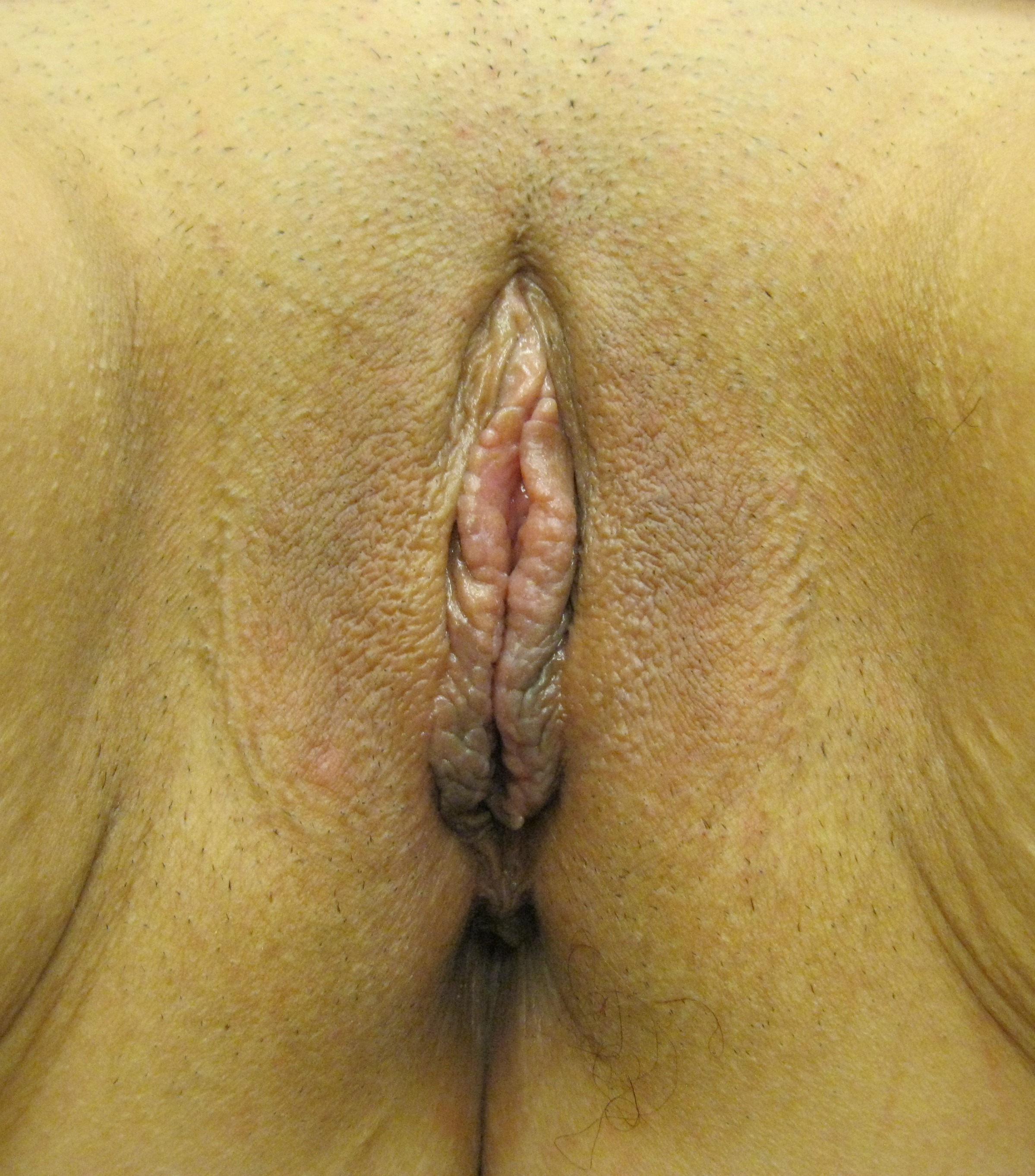 labiaplasty photos labia reduction for large labia Connecticut Jandali Plastic Surgery