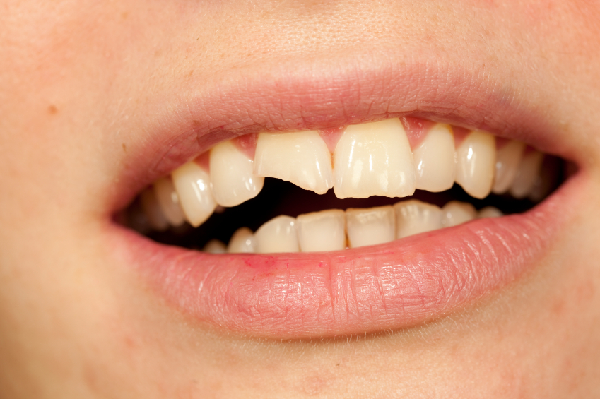 Chipped teeth are common, but often easily fixed
