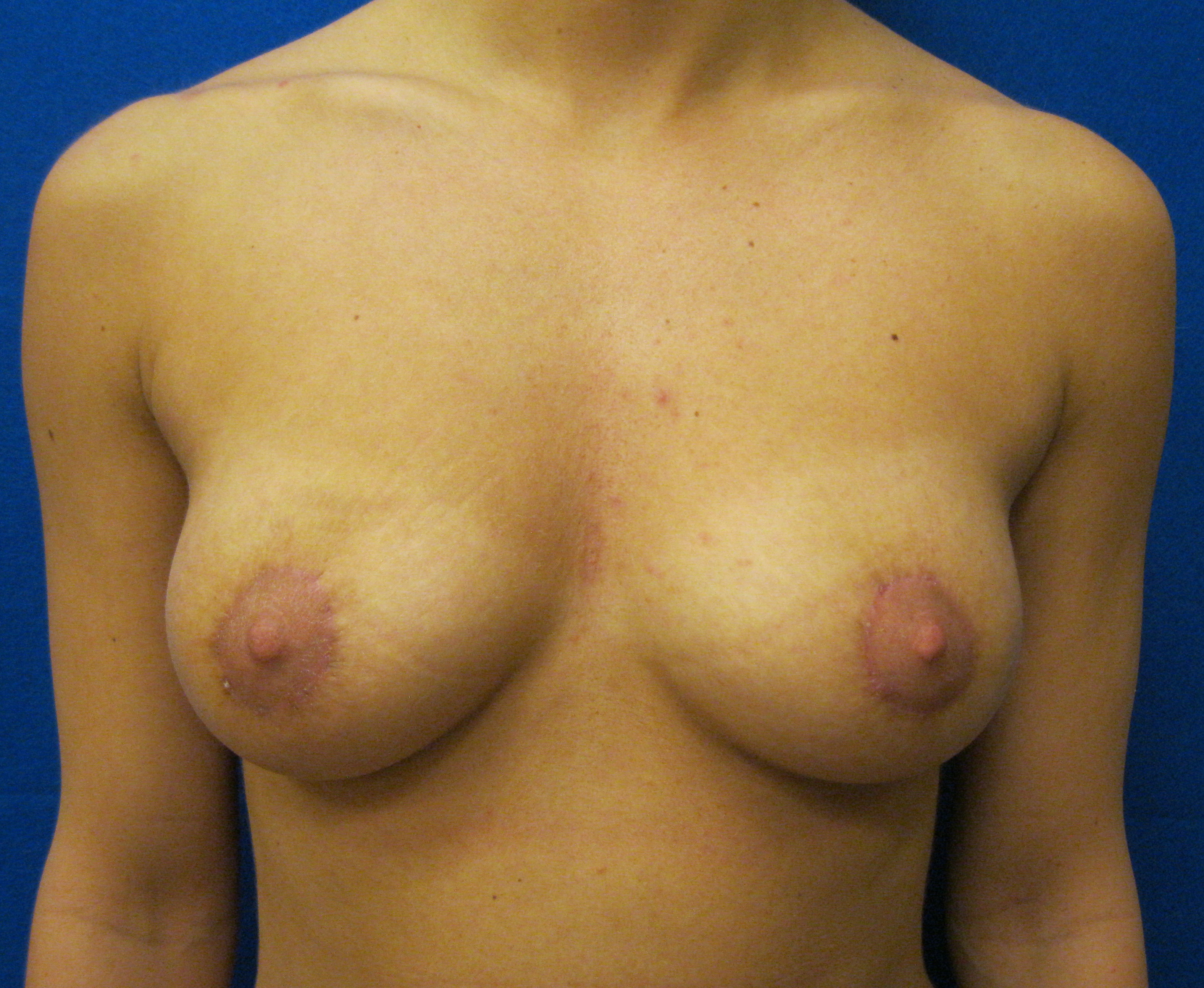 Areola Nipple Reduction Surgery Connecticut