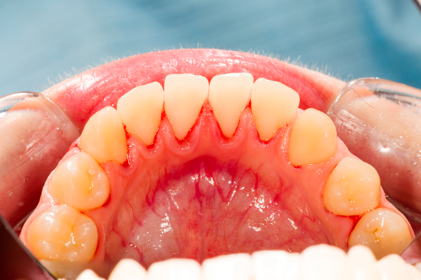 Gum disease can be even worse than it looks!