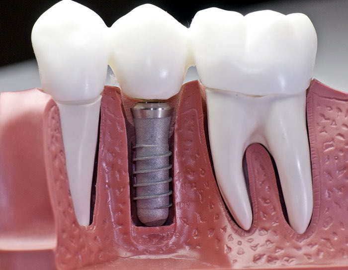 Single unit dental implant