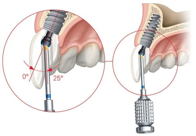 Screw retained implant crown Nobel