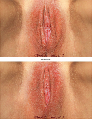 vaginal tightening wrinkled labia connecticut jandali plastic surgery