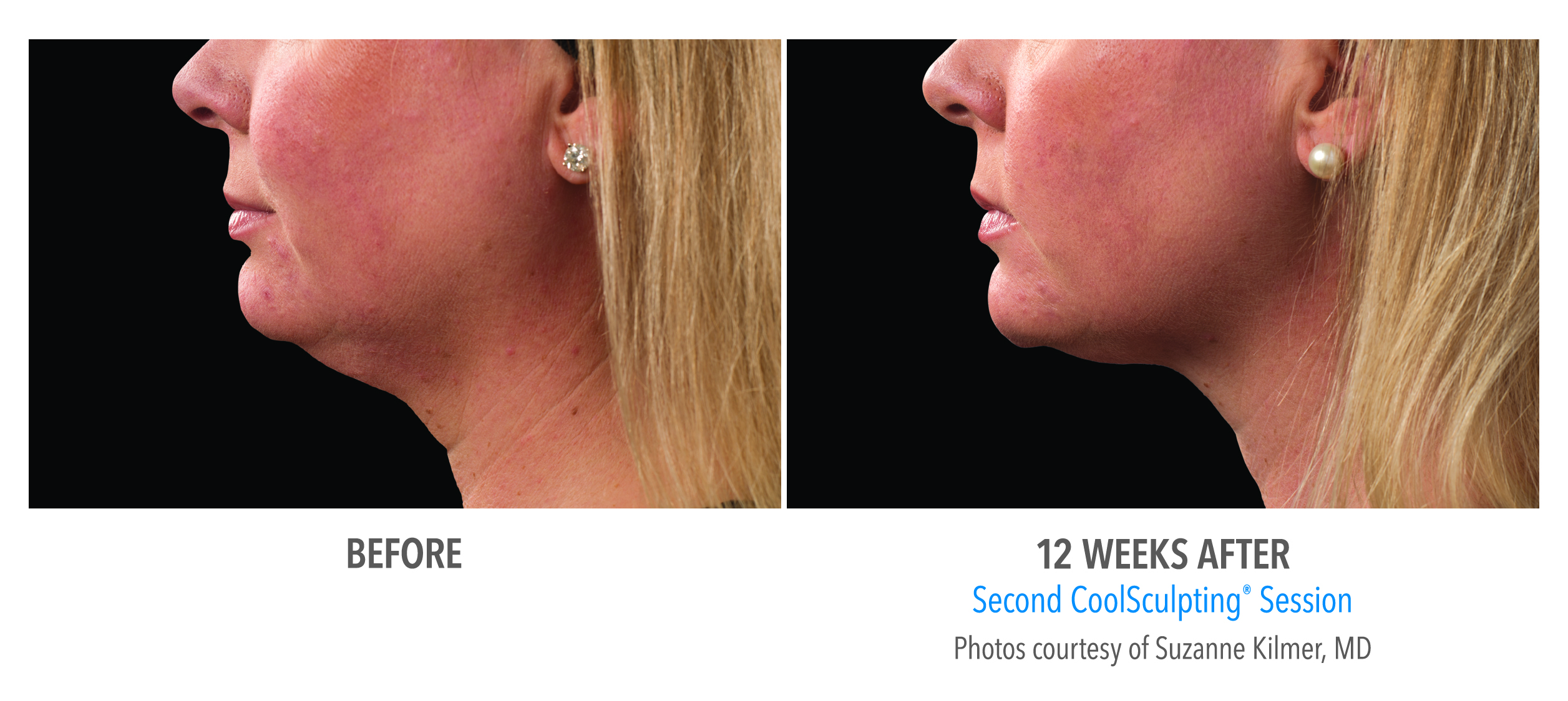Double Chin Fat Treatment Without Surgery Connecticut