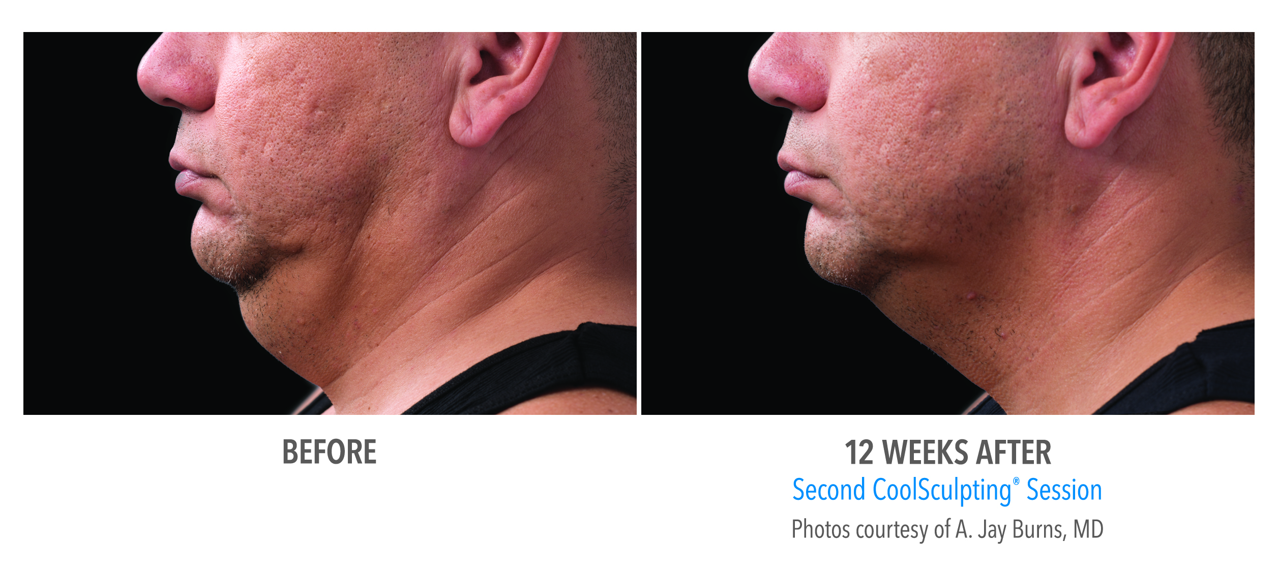 Double Chin Fat Treatment in Men Without Surgery Connecticut