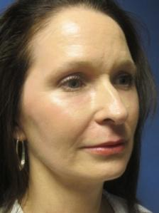 Facelift and aft graft after photo by Dr. Michael Devlin in Little Rock, AR