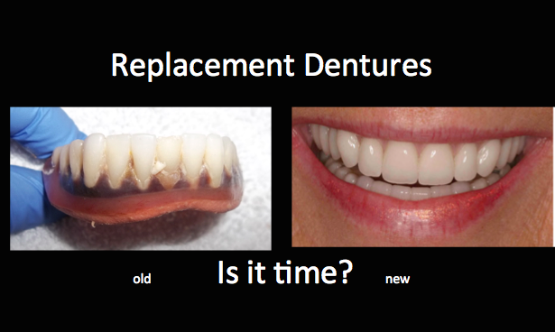 replacement dentures before and after