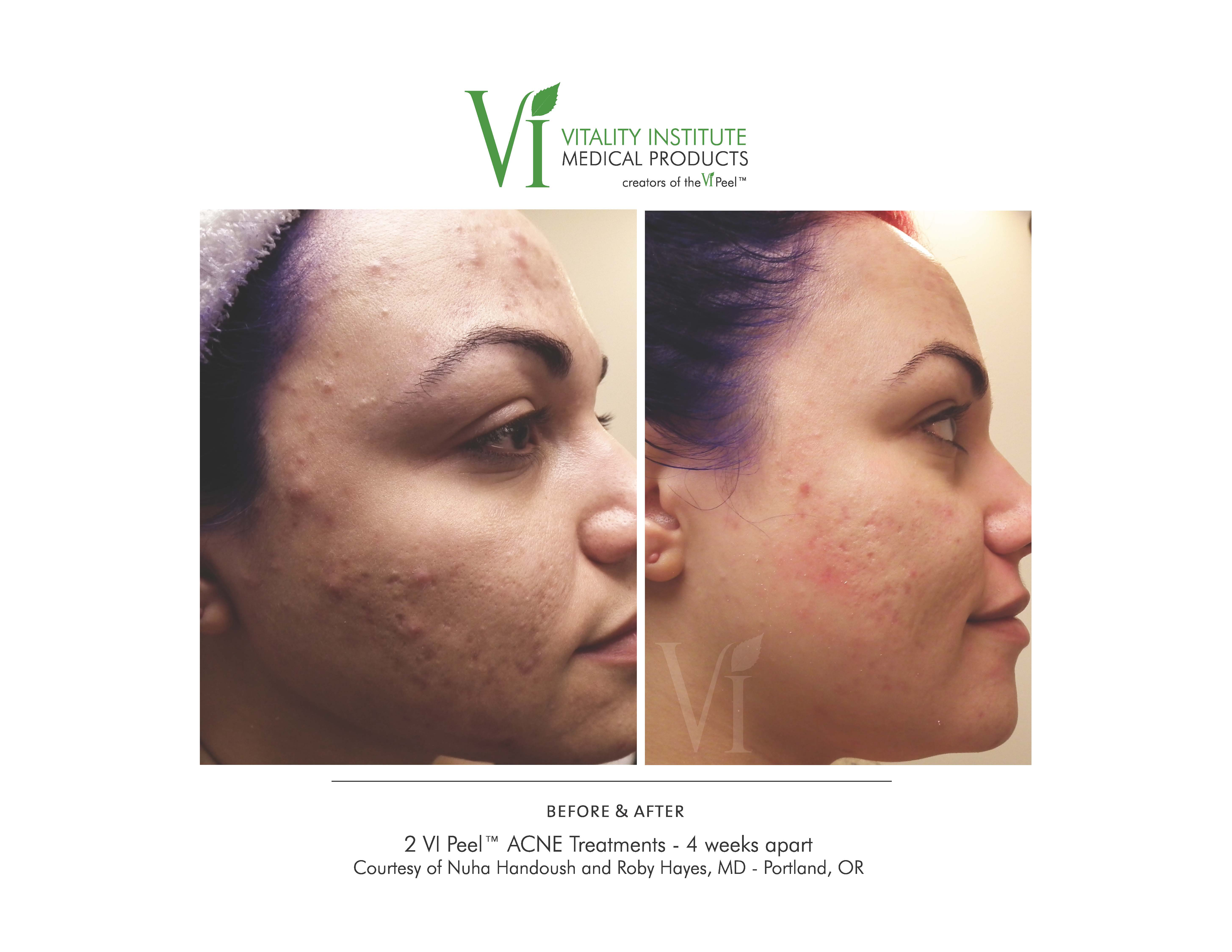 before and after chemical peel image