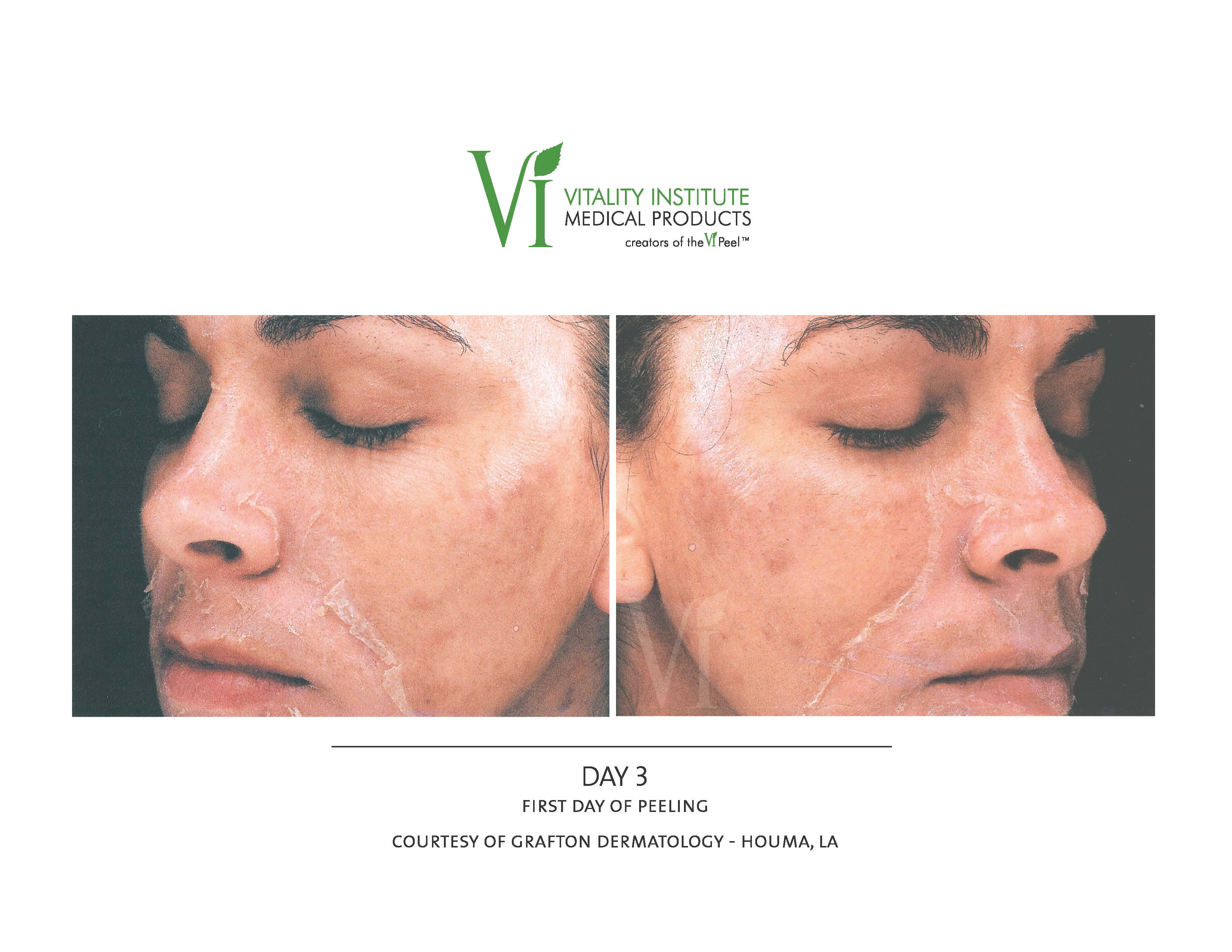 chemical peel post procedure image