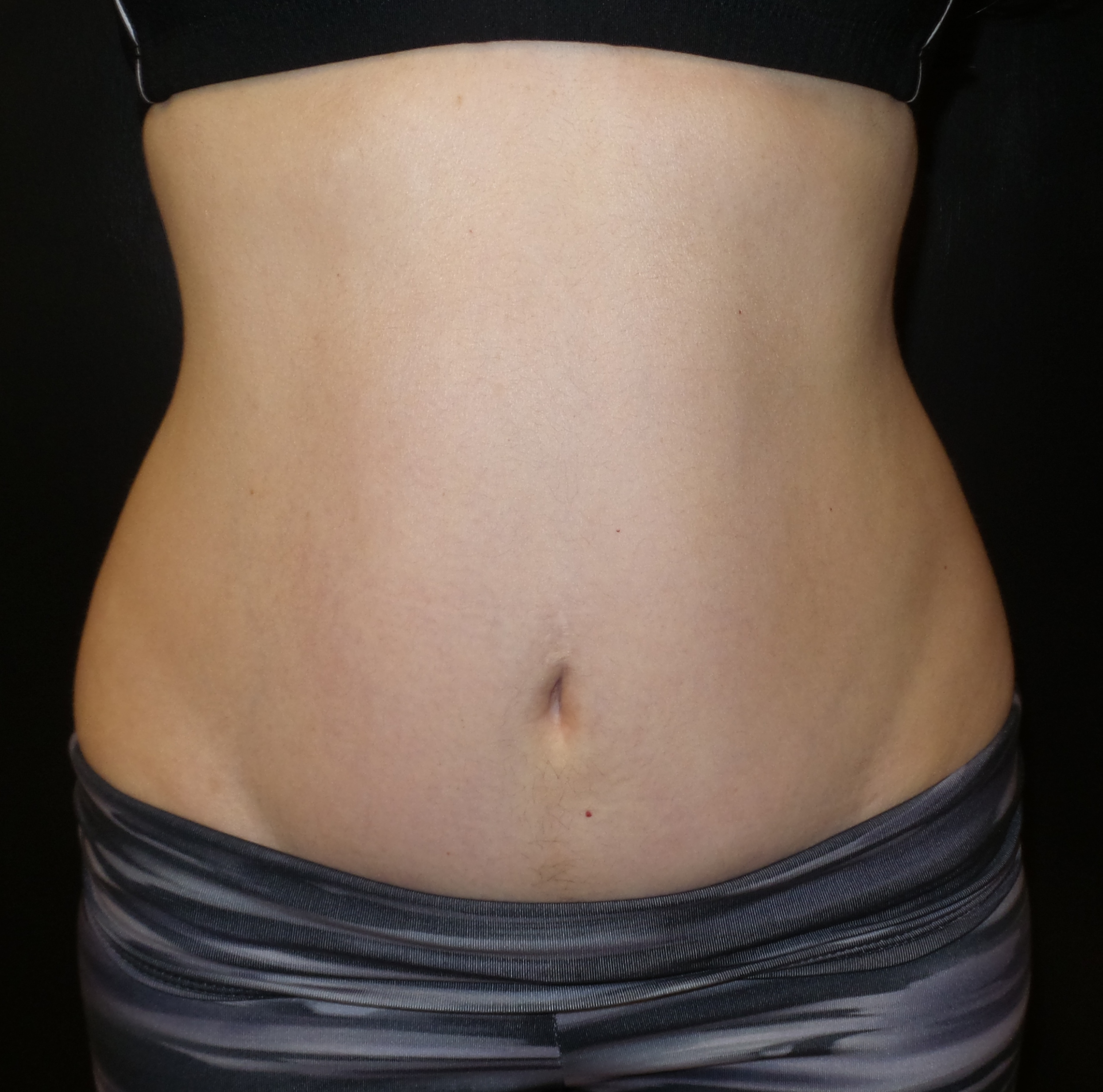 mini tummy tuck connecticut dr. jandali