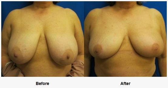 oncoplastic breast reconstruction photos connecticut dr. jandali