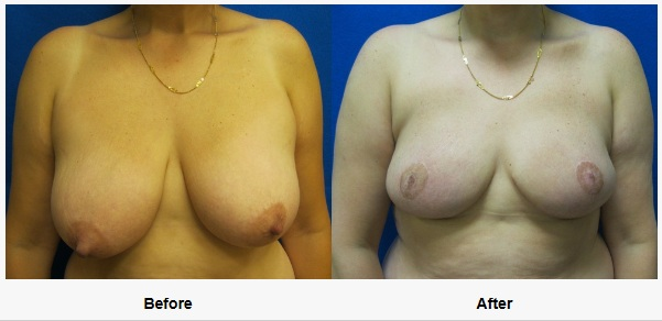 double mastectomy reconstruction saving nipples with breast lift in connecticut