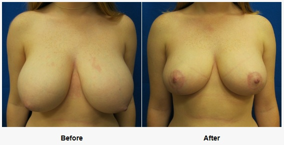 breast reduction covered by insurance in Connecticut Dr. Jandali