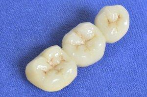 Implant-supported dental bridge.