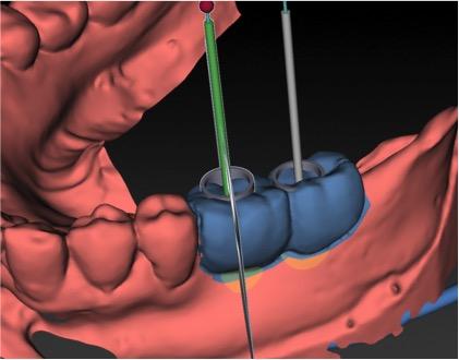 single unit implants showing 2 crowns
