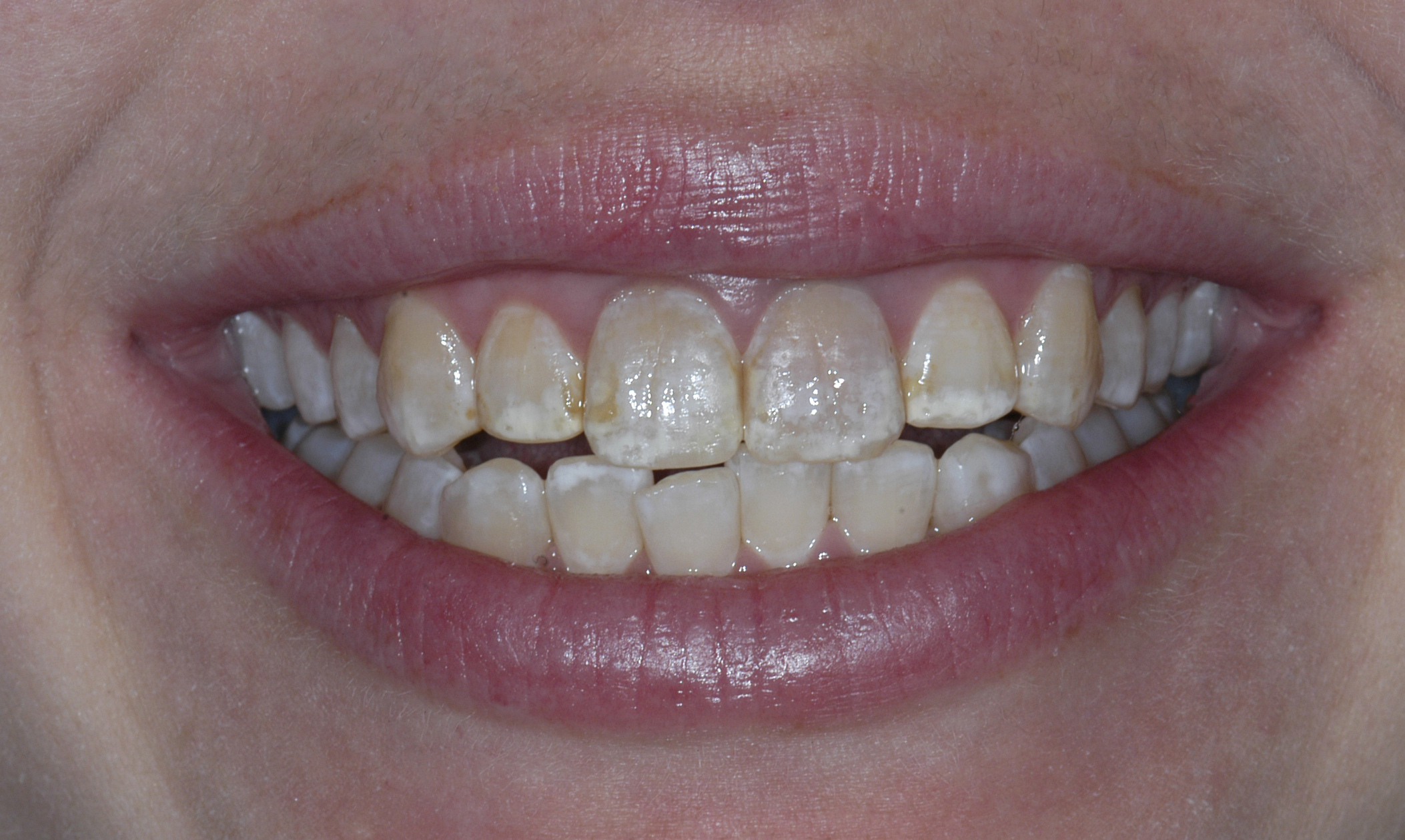Before Porcelain Veneers Photo