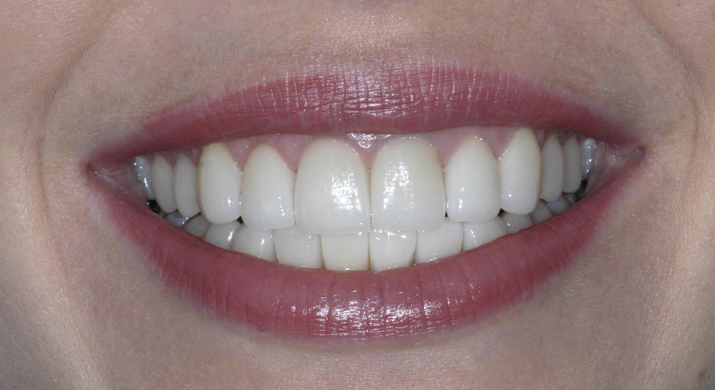 After Porcelain Veneers Photo