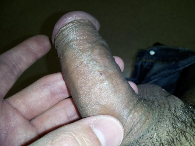 Common Causes of Blisters on Penis - GeniDerm